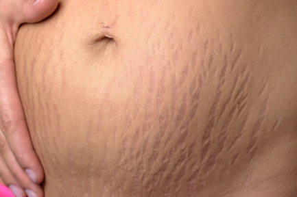 Can you get rid of pregnancy stretch marks