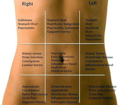 abdominal-pain-localization