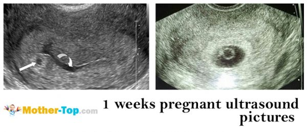 1 weeks pregnant ultrasound pictures