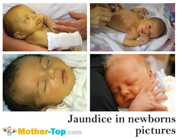 jaundice in newborns pictures