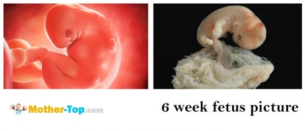 6 week fetus picture