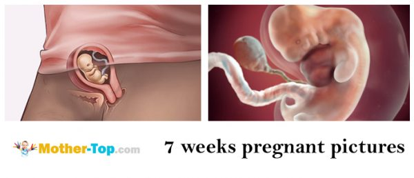 7 weeks pregnant pictures