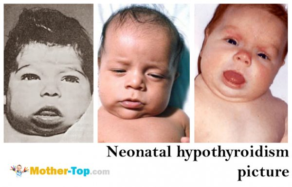 neonatal hypothyroidism picture