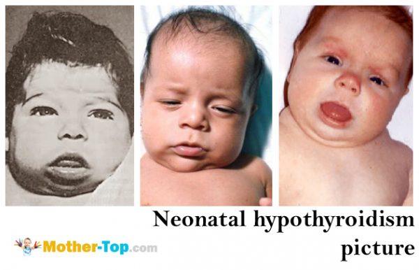 neonatal hypothyroidism picture