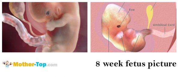 8 week fetus picture
