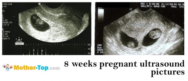 8 weeks pregnant ultrasound pictures
