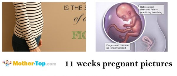 11 weeks pregnant pictures