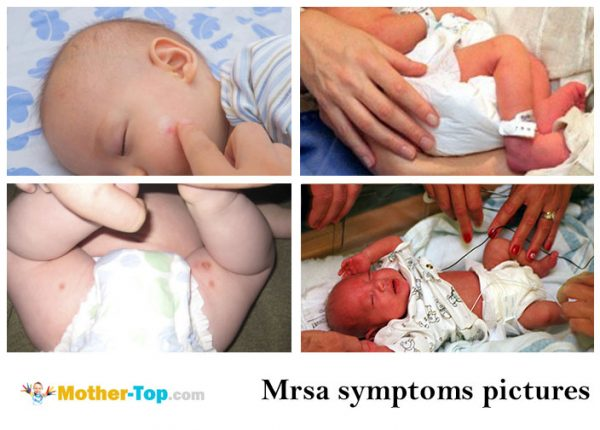 mrsa symptoms pictures