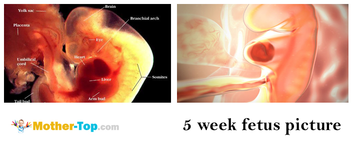 In The Fifth Week Pregnancy Is Characterized By Headaches Increased Urination Weakness And Drowsiness Loss Of Appetite Nausea Vomiting
