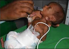 Neonatal asphyxia treatment