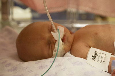 Neonatal asphyxia