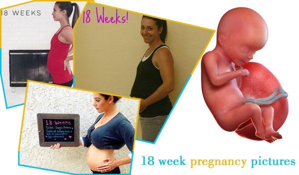 18 week pregnancy pictures