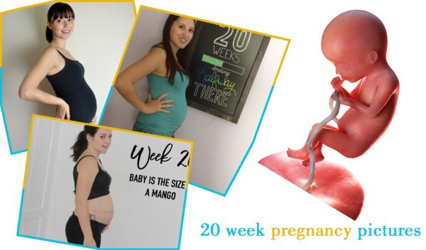 20 week pregnancy pictures