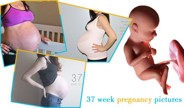 37 week pregnancy pictures