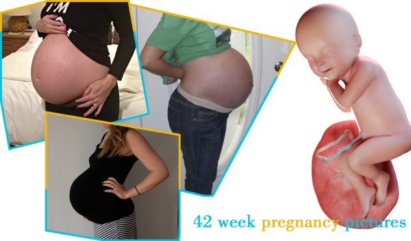 42 week pregnancy pictures