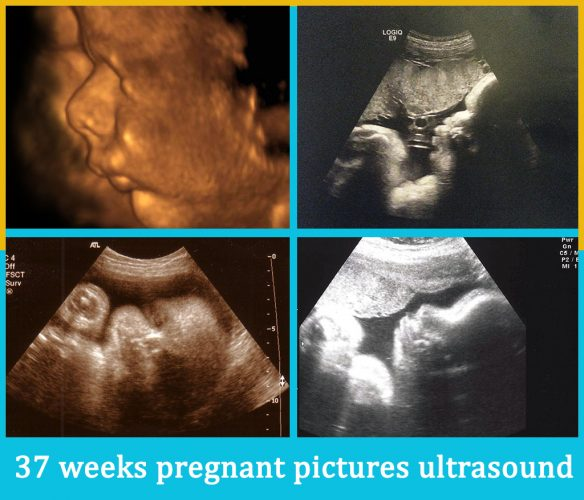 37 weeks pregnant pictures ultrasound