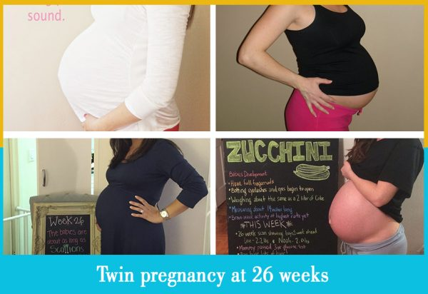 twin pregnancy at 26 weeks